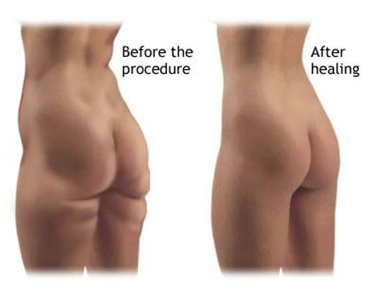 liposuction Las Vegas